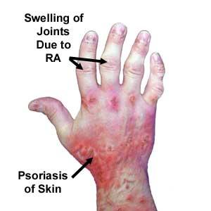 Arthritis what causes psoriatic Psoriatic arthritis